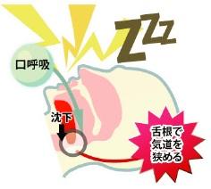 口呼吸の原因
