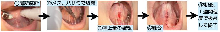 術 口蓋 扁桃 腺 摘出